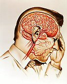 Migraines and Emotions Brain Health