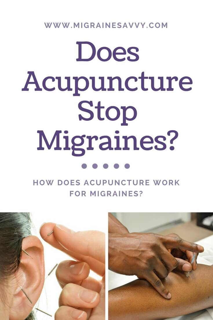 Does Acupuncture Stop Migraines @migrainesavvy #migrainerelief #stopmigraines #migrainesareafulltimejob