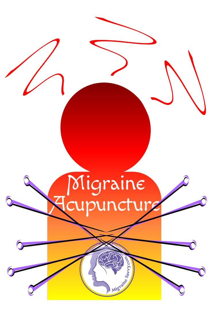 Migraine Acupuncture Points
