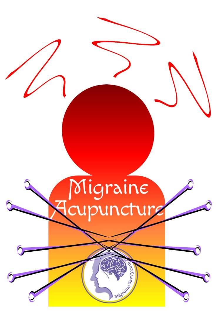Migraine Acupuncture Points