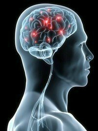 Migraine Stroke Symptoms