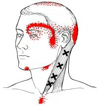 Releasing Myofascial Trigger Points in the face and neck can help reduce migraines.