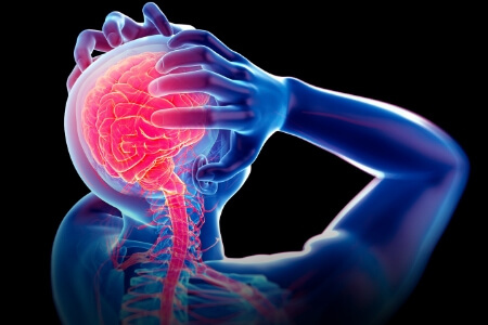 How to Treat a Migrainewith Ice and Heat